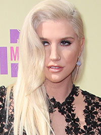 Kesha Memoir