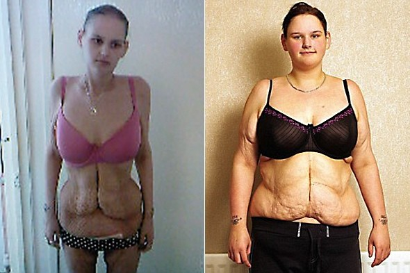 anorexic person in world. anorexic person in world. how