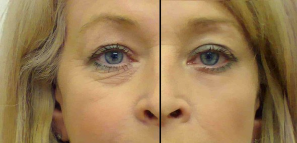Could a 15 minute eye treatment make you look eight years younger?