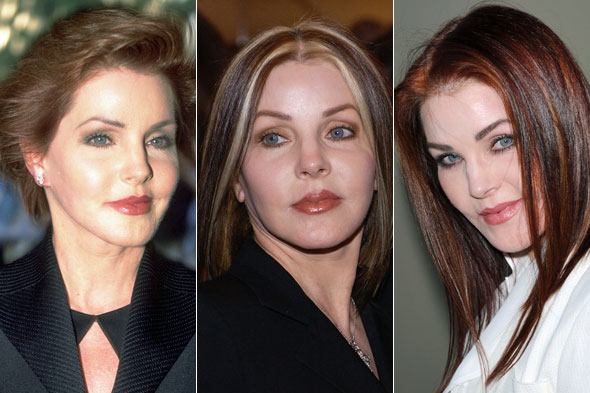 Evolution of Priscilla Presley's face 1999, 2004, 2009 (image hosted by main.stylelist.com)