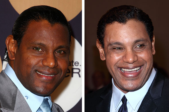 (right) skin lightening treatments. Photo: Getty Images | Wireimage