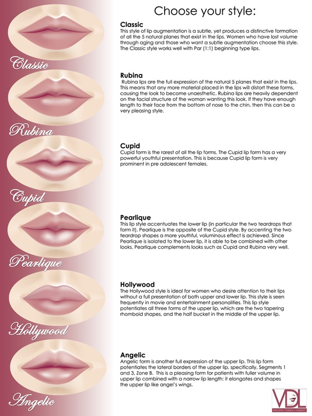 The Vermillion Dollars Lips (VDL) Classification System. Courtesy ...