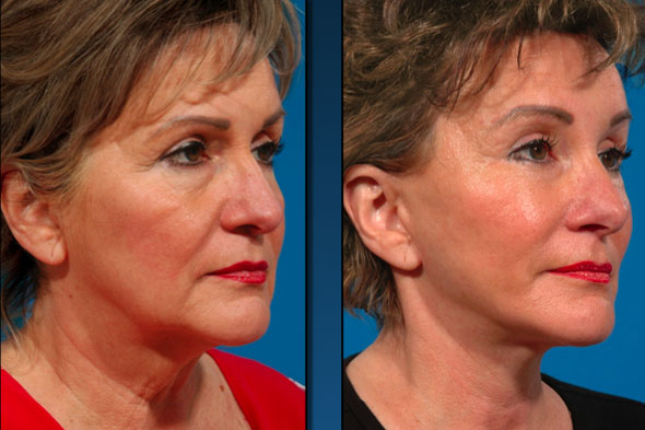 Composite Face-lift