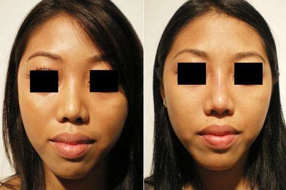 Injection Rhinoplasty
