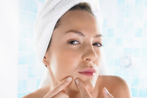 Treat and control adult acne with these expert tips. Photo: Getty