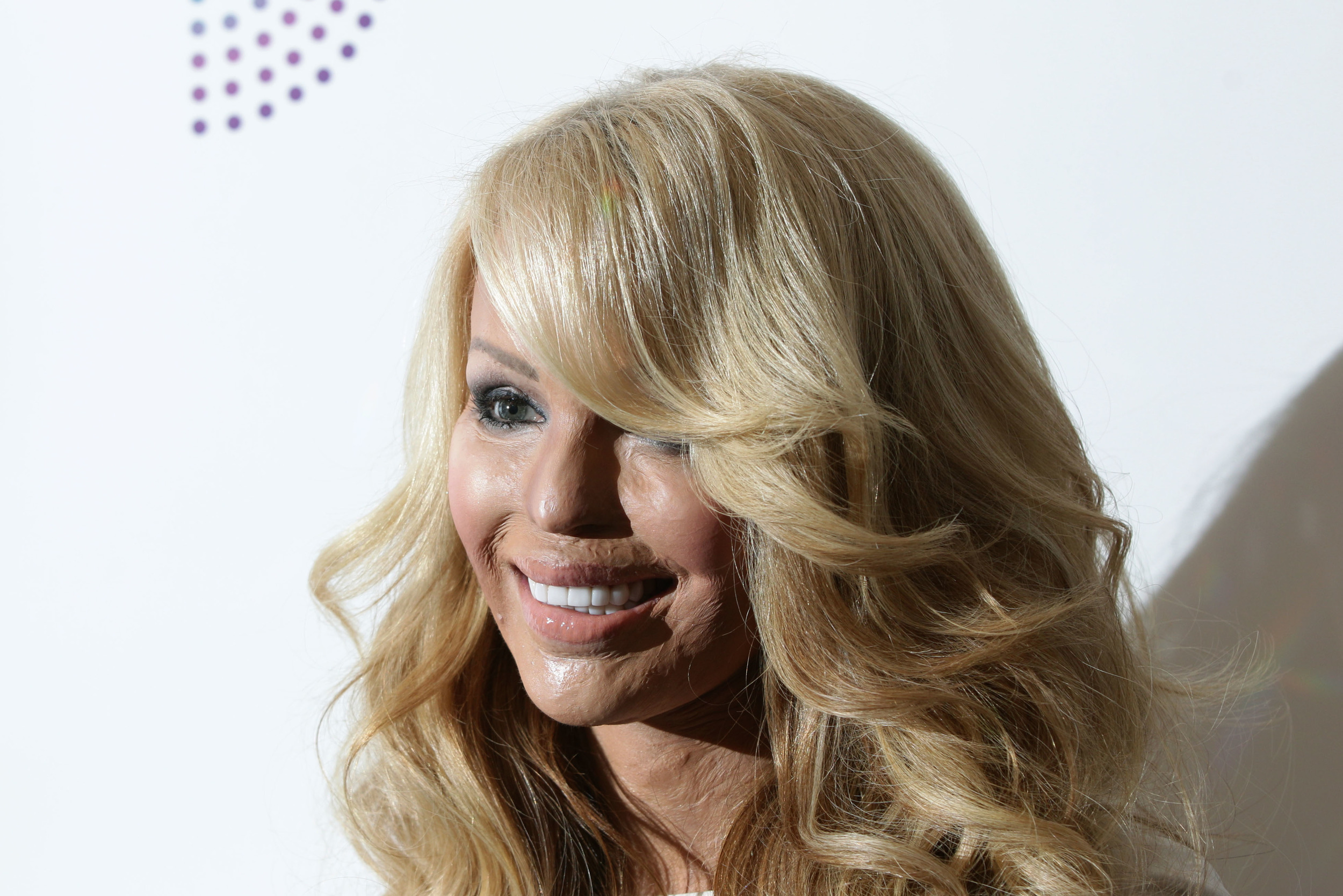 Katie Piper Now March: katie piper - who