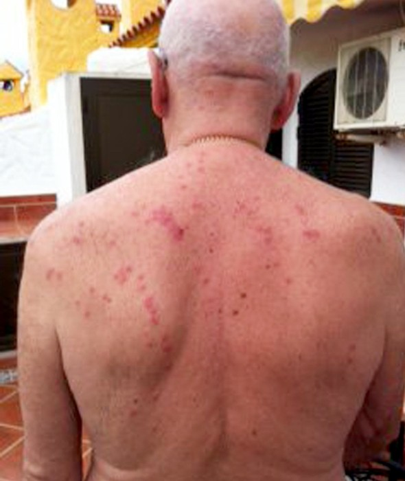 Man 'eaten alive by bedbugs' at Hilton hotel wins compensation