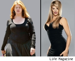 Kirstie Alley: before and after