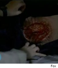 x files wound