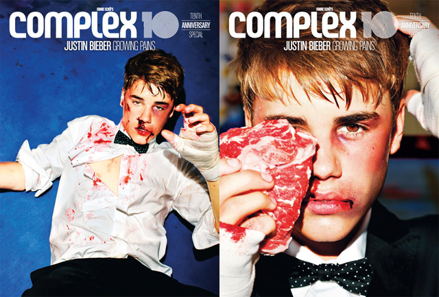 Justin Bieber Gets Beat Up For Complex Mag Covers
