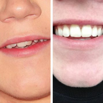 Niall Horan braces off before and after pic