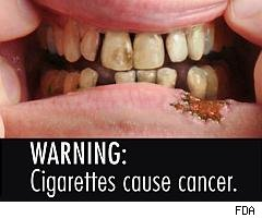 Closeup or oral cancer