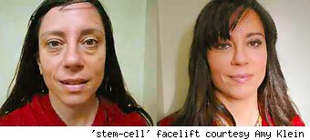 'stem-cell' facelift courtesy Amy Klein