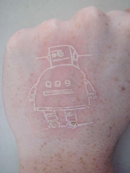 "laser-etchers to give themselves immaculately detailed burn ""tattoos."