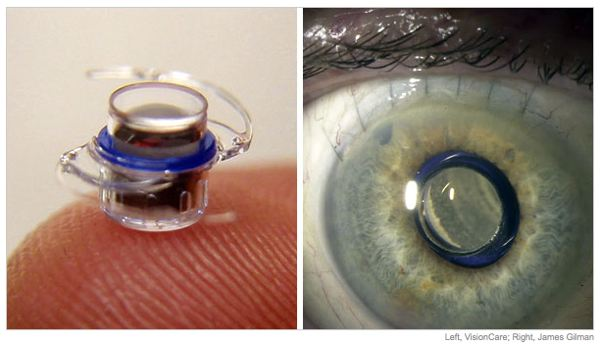 Eye telescope implant (Engadget)