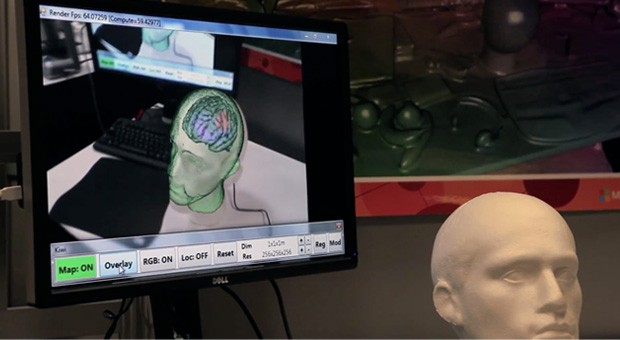 Kinect Fusion-powered concept demos AR brain models for neurosurgeons (video)