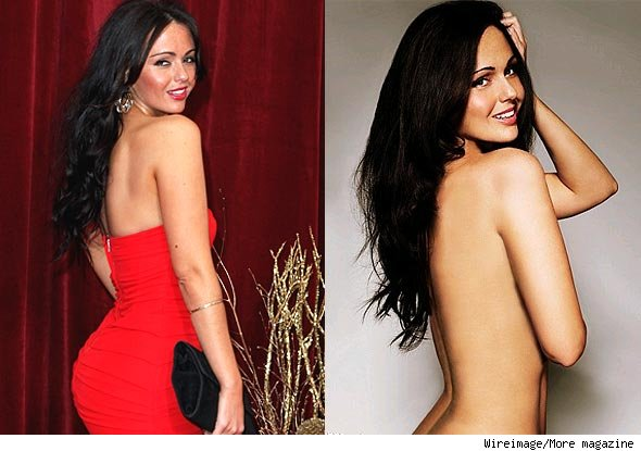 jennifer metcalfe before and after lipo