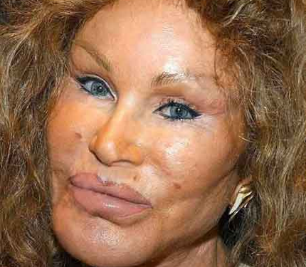 cat woman, jocelyn wildenstein