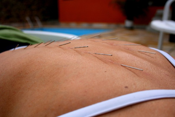 Acupuncture changes the brain's perception of pain