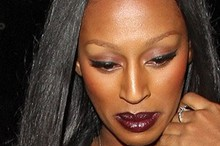 Is Alexandra Burke losing her hair?