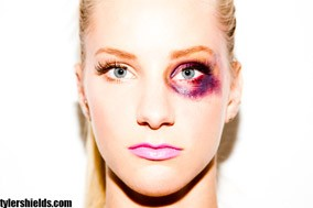 Heather Morris with a black eye for Tyler Shields
