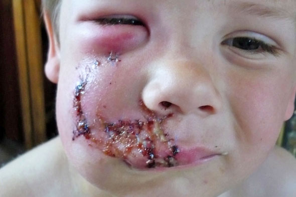 Dog attacks three-year-old boy