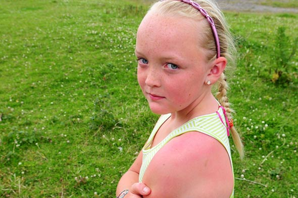 Girl burns and blisters after school bans sun cream