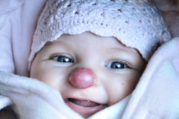 Clown nose girl has birthmark removed
