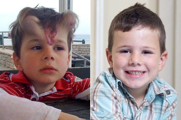 Five-year-old George Ashman has horn implants in his forehead to get rid of birthmark