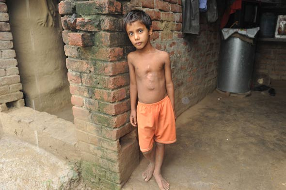 Eight limbed boy celebrating after surgery to remove parasitic twin