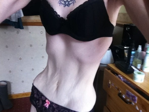 Anorexic mum wears same size clothes as SEVEN year old daughter