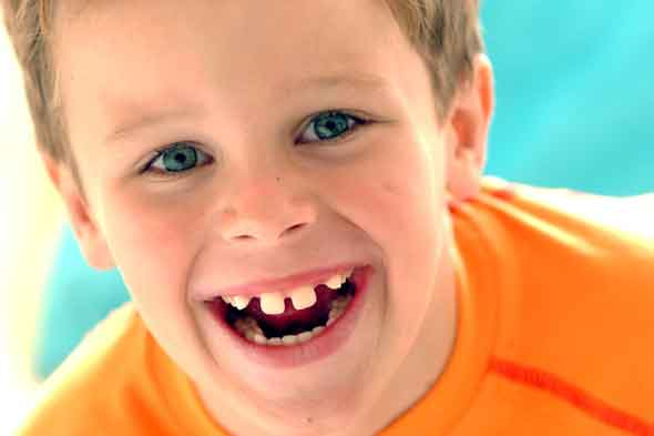 Child with gappy teeth