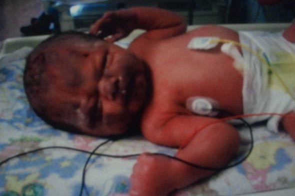 Baby Theo in Neonatal