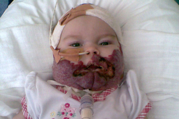 Little Millie can smile again after treatment for birthmark that nearly strangled her to death