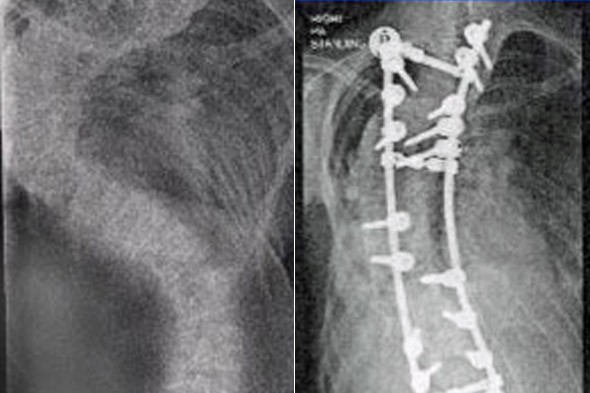 x-rays show Laura Fitzwalter's curved spine