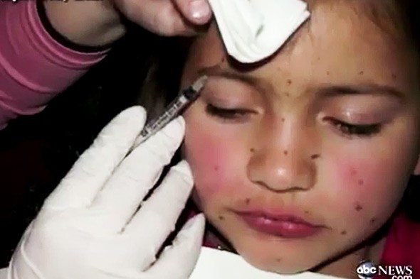 Mum injects eight-year-old with botox