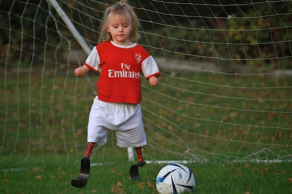 Brave Ellie plays football without arms and legs