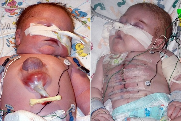 Medical miracle Ryan is first baby to survive being born with his heart outside his body