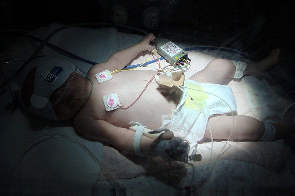 Medical miracle Olivia astounds doctors by surviving despite being born without any blood