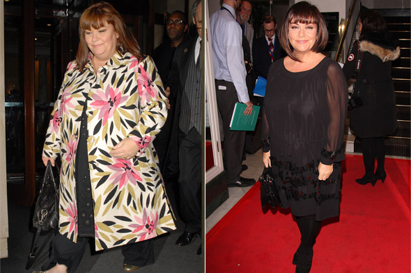 Dawn French before and after weight loss