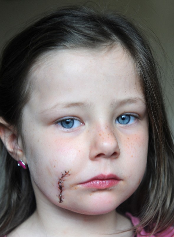 Mum calls for law change after little girl is savaged by neighbour's Jack Russell