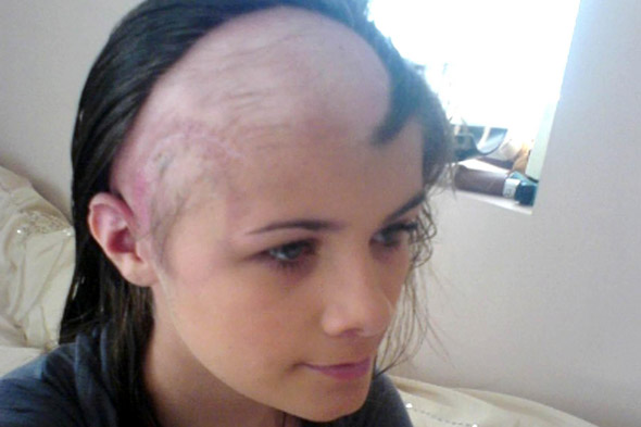 Teenager's amazing recovery from brain tumour and stroke