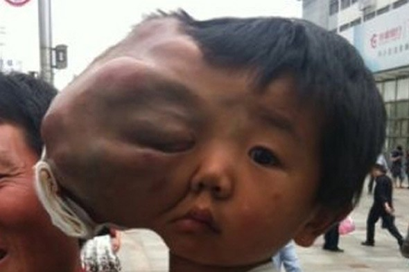 Boy with facial swelling the size of his head faces death without treatment