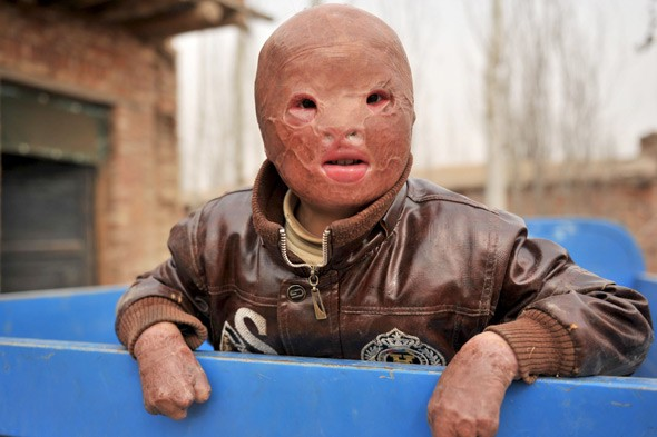Horrifically burned 'Chinese Mask Baby' goes back to school