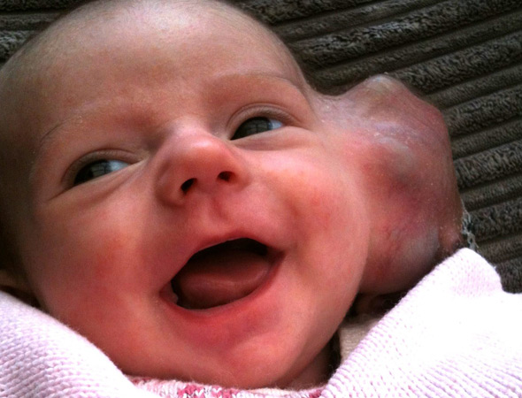 'Doctors insisted my baby had a birthmark - but it was a tumour'. Now four-month-old Isabel has lost her ear
