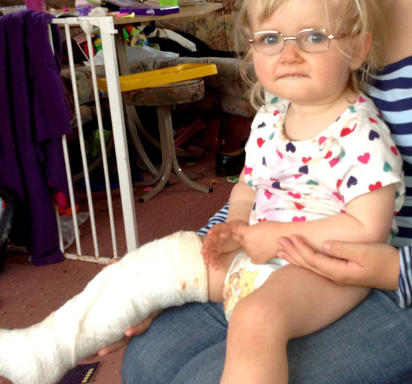 Doctors plaster little Lucy's broken leg - but it's the WRONG ONE!
