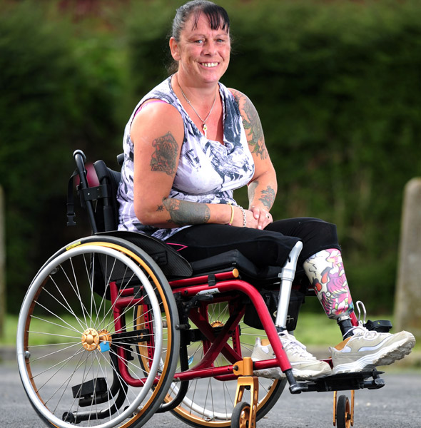 Mum who lost two children in a house fire has both legs amputated after burns cause her unbearable pain