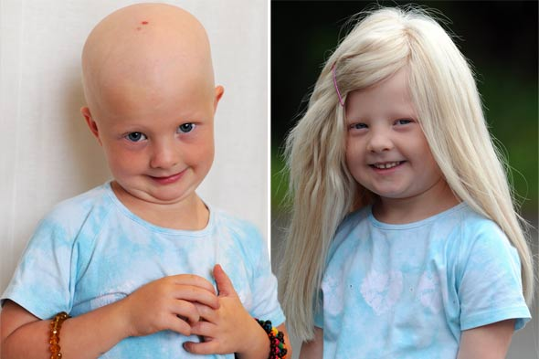 Alopecia sufferer Harriet starts her first day at school with a new head of hair