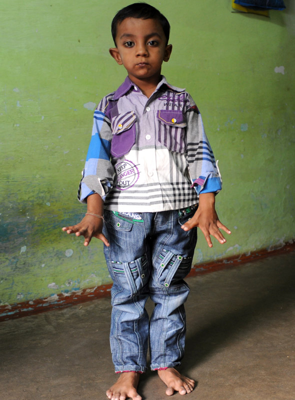 Boy, 4, has 25 fingers and toes