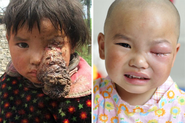 Girl has tennis ball-sized tumour removed from her eye